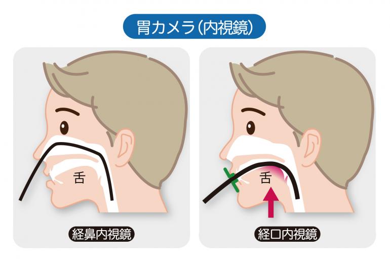 経口検査・経鼻検査を患者様にお選びいただいています